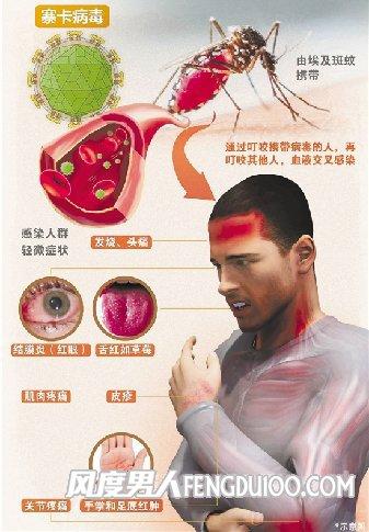 中国无须担心寨卡病毒
